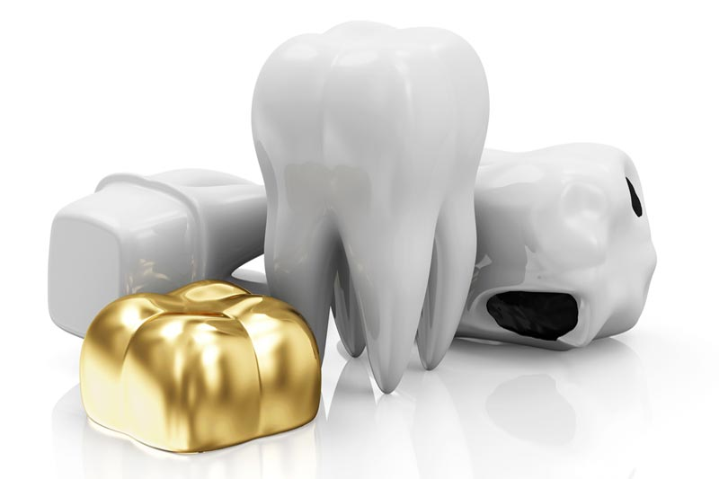 Dental Crown Materials