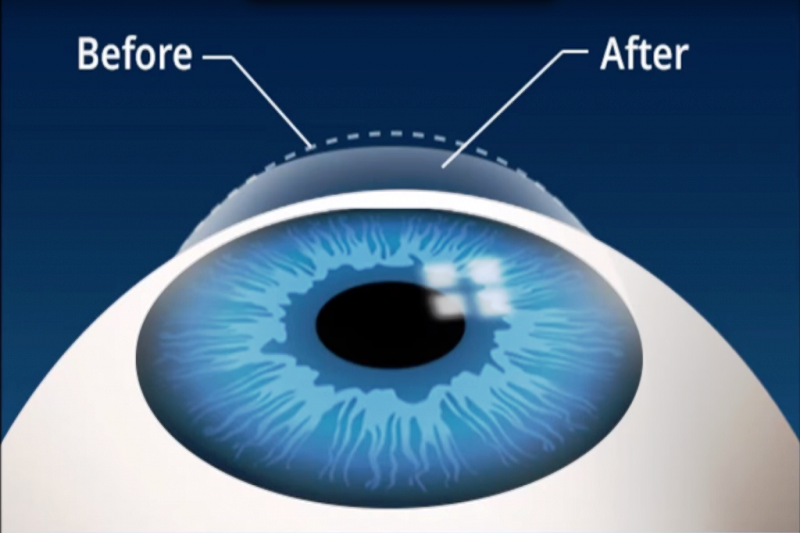 The Differences Between Lasik And Lasek Eye Surgery